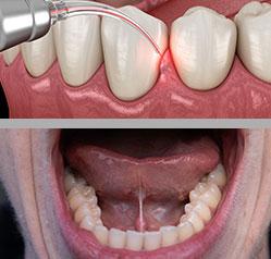 Laser gum treatment: Periodontitis treatment and gum disease treatment
